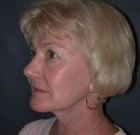 Facelift Patient 89510 After Photo Thumbnail # 4