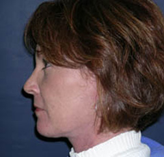 Face Lift and Neck Lift Patient 43592 After Photo # 6