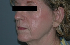 Facelift Patient 51465 Before Photo # 3