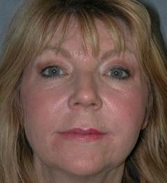 Lip Augmentation Patient 97184 After Photo # 2