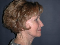 Facelift Patient 25056 After Photo # 6