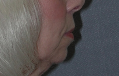 Chin Enhancement Patient 67772 Before Photo # 1