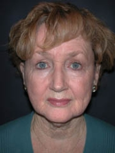 Facelift Patient 25056 Before Photo # 1