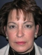 Face Lift and Neck Lift Patient 98257 After Photo Thumbnail # 2