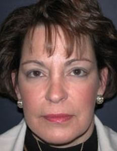 Face Lift and Neck Lift Patient 98257 After Photo # 2