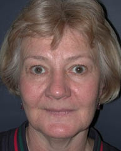 Facelift Patient 89510 Before Photo # 1