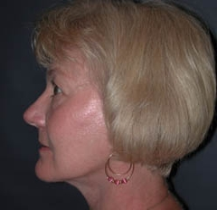 Facelift Patient 89510 After Photo # 6