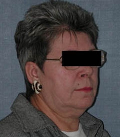 Face Lift and Neck Lift Patient 52396 Before Photo # 3