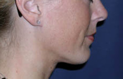 Chin Enhancement Patient 58250 After Photo # 2