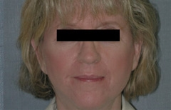 Facelift Patient 51465 After Photo # 2