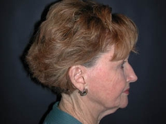 Facelift Patient 25056 Before Photo # 5