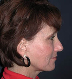 Lip Augmentation Patient 70436 After Photo # 6