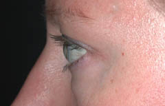 Eyelid Surgery Patient 26007 Before Photo # 3