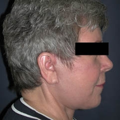 Face Lift and Neck Lift Patient 52396 After Photo # 6