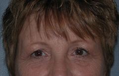 Forehead Lift - Browlift Patient 66484 Before Photo # 1