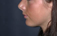 Chin Enhancement Patient 98890 After Photo # 2