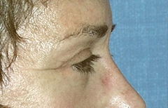 Eyelid Surgery Patient 29507 After Photo # 4