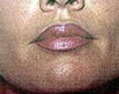Lip Augmentation Patient 36015 After Photo # 2