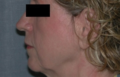 Facelift Patient 51465 Before Photo # 5