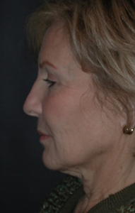 Facelift Patient 33485 Before Photo # 5