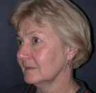Facelift Patient 89510 Before Photo Thumbnail # 3