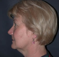 Facelift Patient 89510 Before Photo # 5