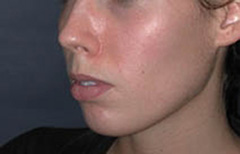 Chin Enhancement Patient 68635 Before Photo # 5