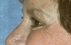 Eyelid Surgery Patient 39410 After Photo Thumbnail # 4