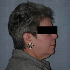 Face Lift and Neck Lift Patient 52396 Before Photo Thumbnail # 5