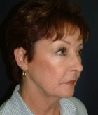 Face Lift and Neck Lift Patient 62384 Before Photo Thumbnail # 3