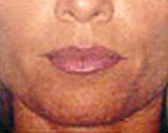 Lip Augmentation Patient 36015 Before Photo # 1