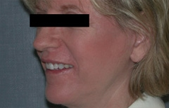 Facelift Patient 51465 After Photo # 4