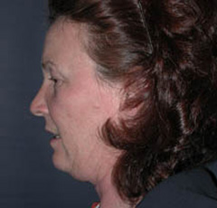Face Lift and Neck Lift Patient 43592 Before Photo # 5