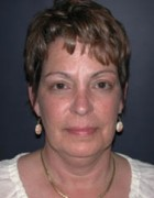 Face Lift and Neck Lift Patient 98257 Before Photo Thumbnail # 1