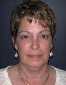 Face Lift and Neck Lift Patient 98257 Before Photo # 1