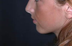 Chin Enhancement Patient 98890 Before Photo # 1