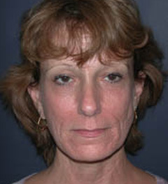 Lip Augmentation Patient 70436 Before Photo # 1