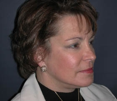 Face Lift and Neck Lift Patient 98257 After Photo # 4