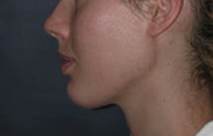 Chin Enhancement Patient 68635 After Photo # 2