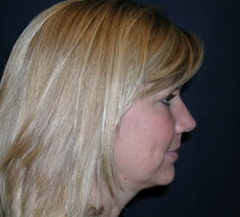 Forehead Lift - Browlift Patient 54556 Before Photo # 5