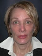 Face Lift and Neck Lift Patient 54162 After Photo Thumbnail # 2