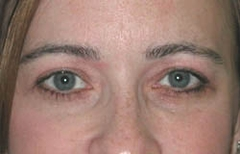 Eyelid Surgery Patient 19769 After Photo # 2