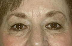 Eyelid Surgery Patient 39410 Before Photo # 1