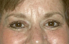 Eyelid Surgery Patient 39410 After Photo # 2