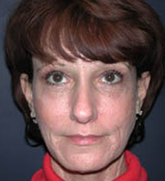 Lip Augmentation Patient 70436 After Photo # 2