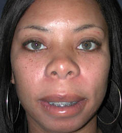 Lip Augmentation Patient 20077 After Photo # 2