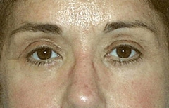 Eyelid Surgery Patient 29507 After Photo # 2