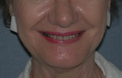 Chin Enhancement Patient 32040 After Photo # 4