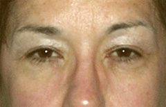 Eyelid Surgery Patient 29507 Before Photo # 1