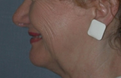 Chin Enhancement Patient 32040 After Photo # 2